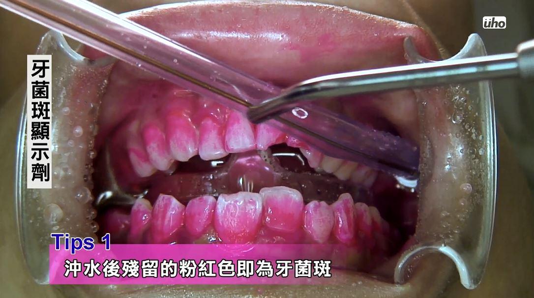 利用牙菌斑顯示劑把牙菌斑染出來,這些被染成粉紅色的都是牙菌斑