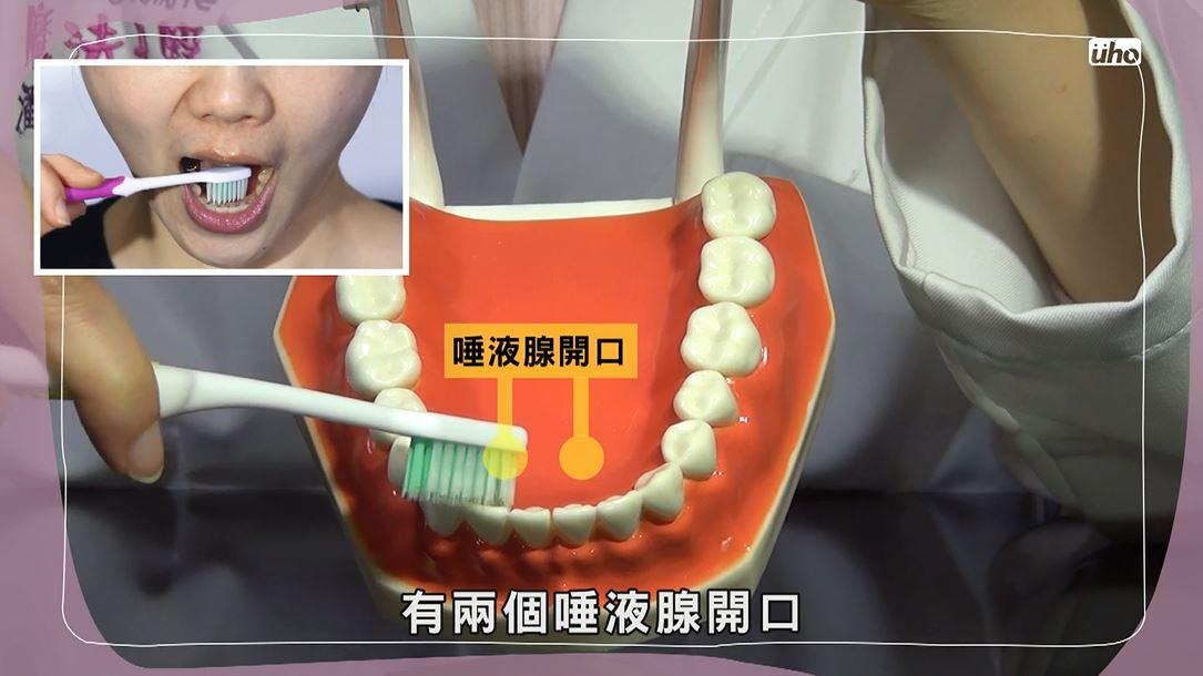 舌頭下方有兩個唾液腺開口,靠近下顎前牙的內側